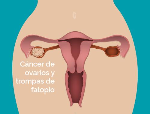 Cáncer de ovarios y trompas de falopio